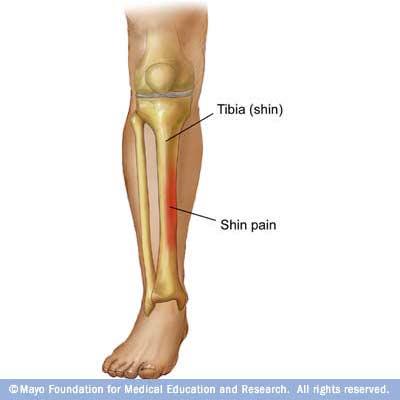 Tratamentul articular Ulyanovsk tratamentul cu unguent pentru artrita la genunchi