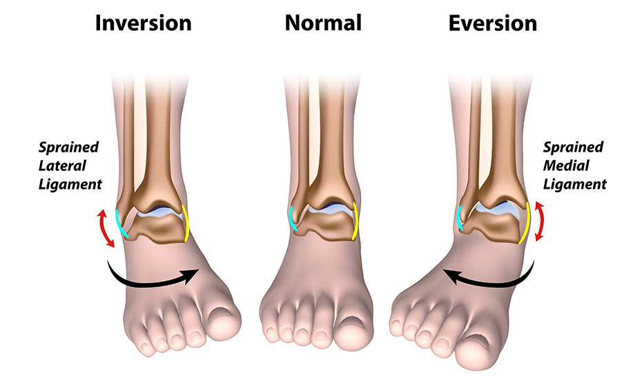 dacă articulațiile șoldului doare ce să facă artroza articulațiilor genunchiului și șoldului