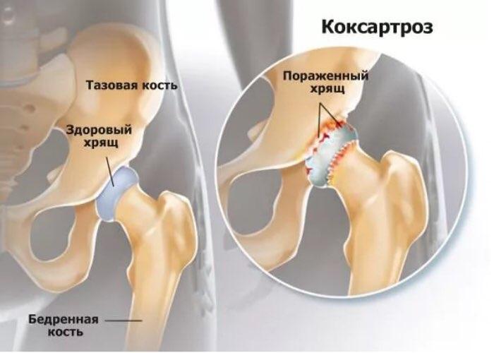 коксартроз лечение препараты jeleu de dureri articulare