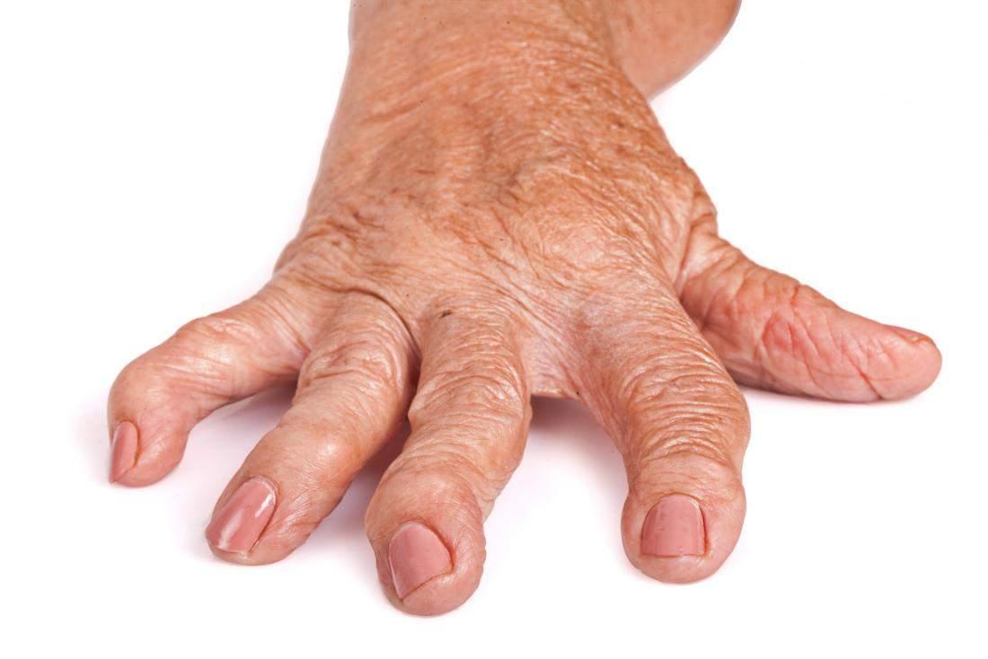 deteriorarea deschisă la articulațiile mari dacă articulațiile crapa ce unguent va ajuta