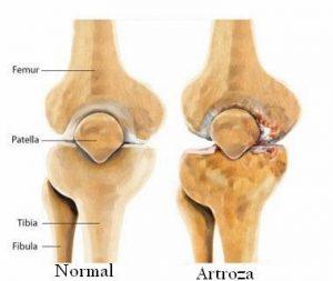 Artroza - Kinetic