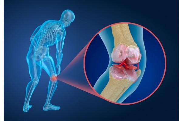 Tratament cu artroza genunchiului de cupru