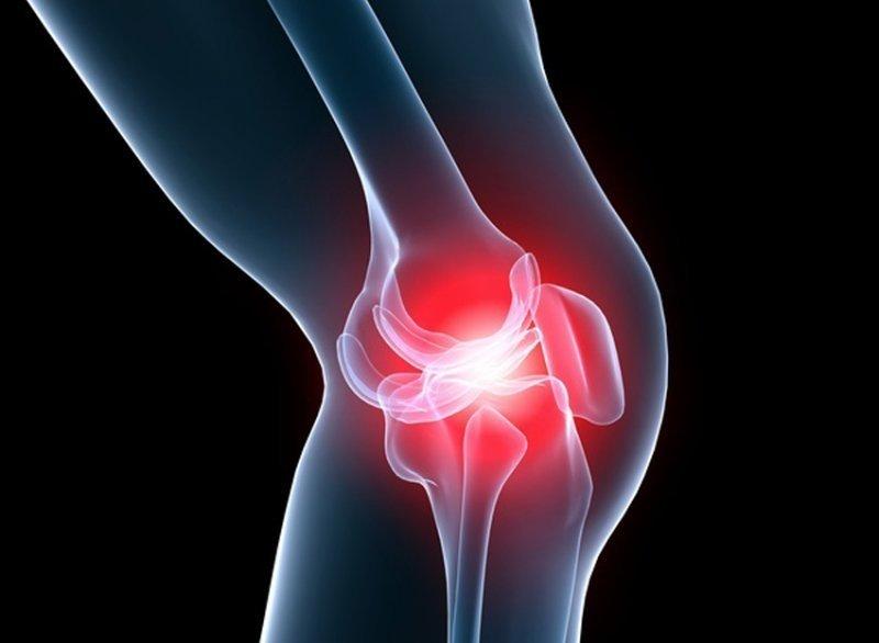 cum se tratează artroza coxo