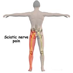 artroza tratamentului deplasării genunchiului