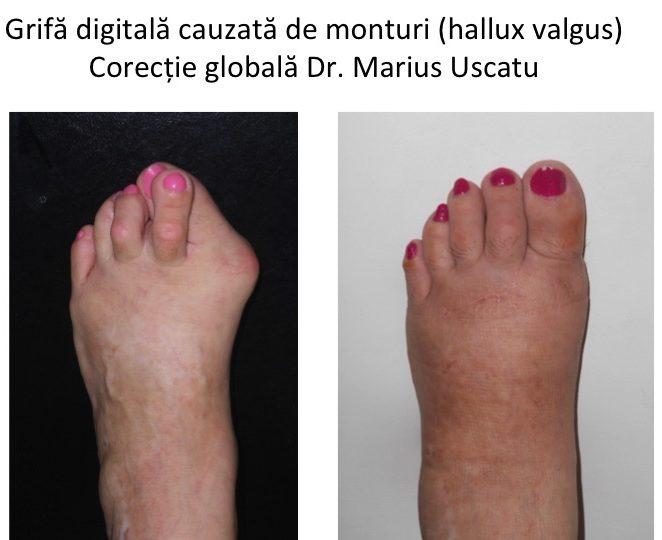 tratamentul artrozei care deformează degetele de la picioare dacă articulațiile picioarelor doare decât să trateze
