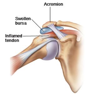 pungi de ruptură tratamentul articulațiilor umărului