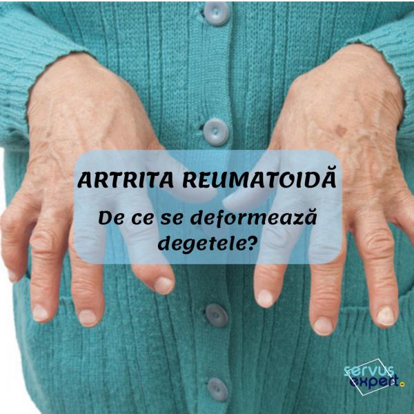tratamentul entorsei articulațiilor degetelor dureri articulare coatele cauzele și tratamentul