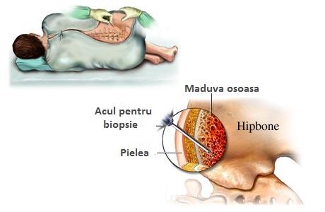 deformând artroza acută a genunchiului