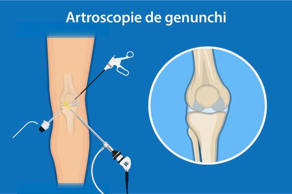 sub sarcină, articulația genunchiului doare