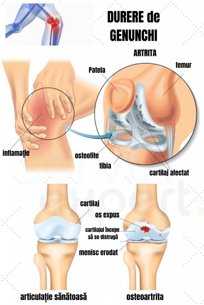 durere și fluid în articulația genunchiului