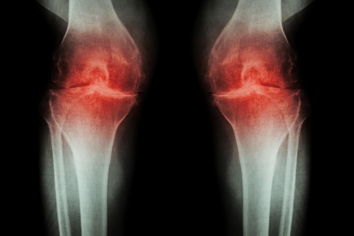 retete de tratament cu artroza artroza remedială articulară