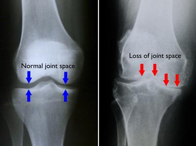 artroza genunchiului de gradul întâi cum se tratează tratamentul unguentului articulației umărului