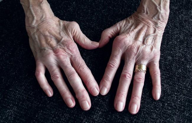 Artrita articulației încheietura mâinii drepte