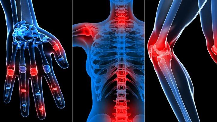 artroza traumatică a articulației durere în articulația șoldului cu scleroză multiplă