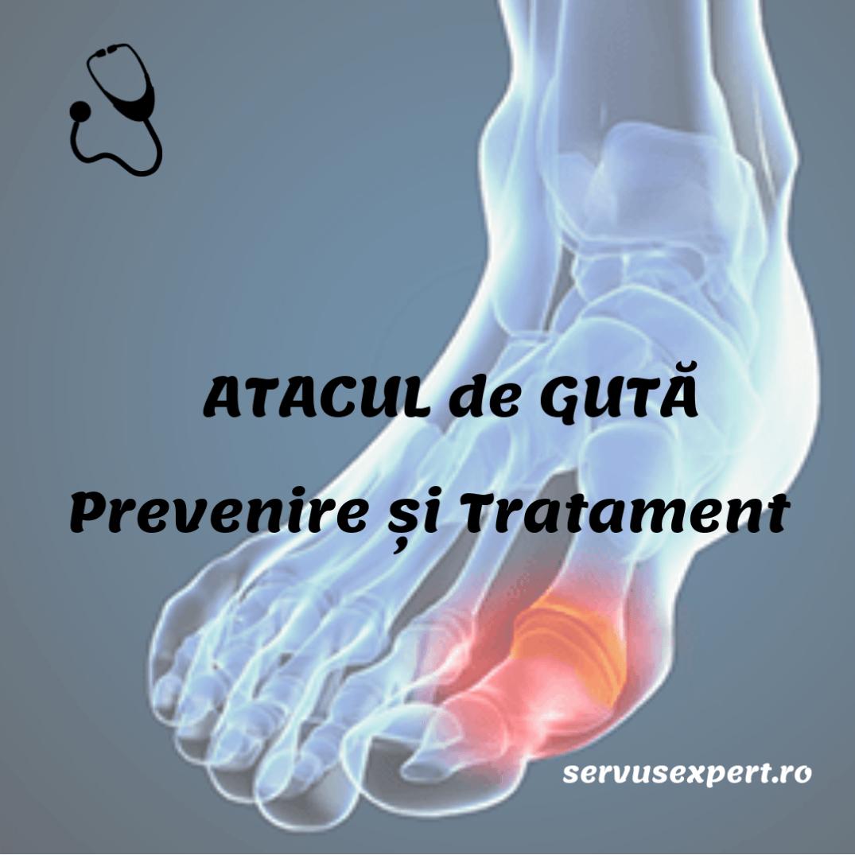 artrita guta a articulatiei umarului tratament de fizioterapie cu artroză manuală