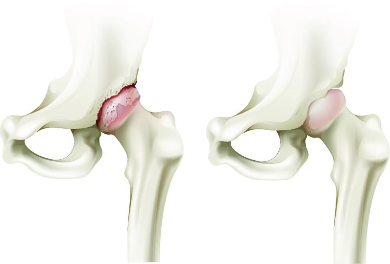 Afla totul despre artroza: Simptome, tipuri, diagnostic si tratament | omnurrom.ro