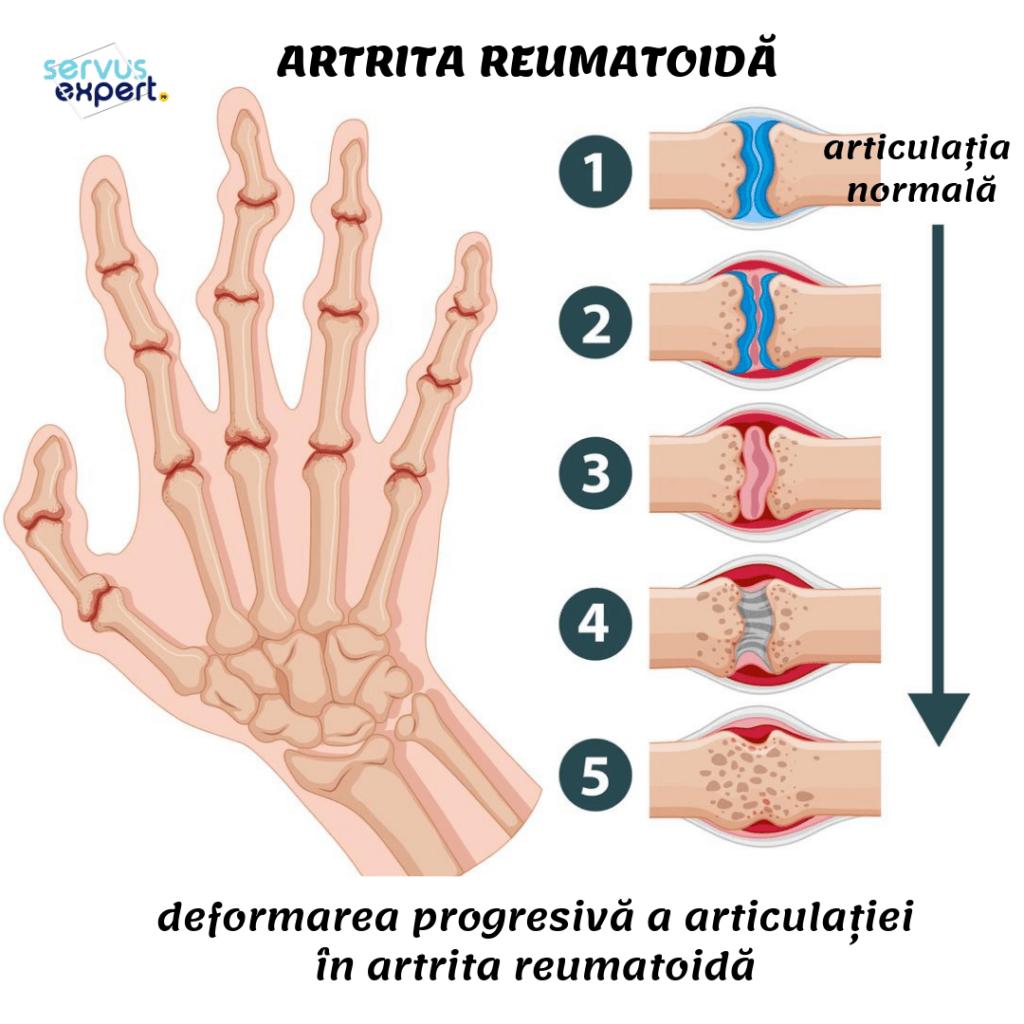 ce articulații doare cu artrita reumatoidă