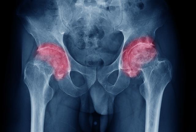 simptomele artritei și tratamentul șoldului