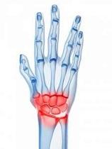 tratamentul de luxare a articulațiilor la încheietura mâinii dureri articulare la mâinile degetelor