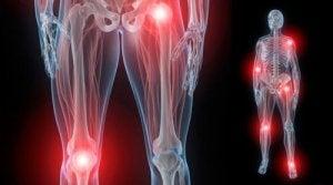 artroza degetelor de la picioare ale tratamentului piciorului tratamentul inflamației unguentului de gleznă