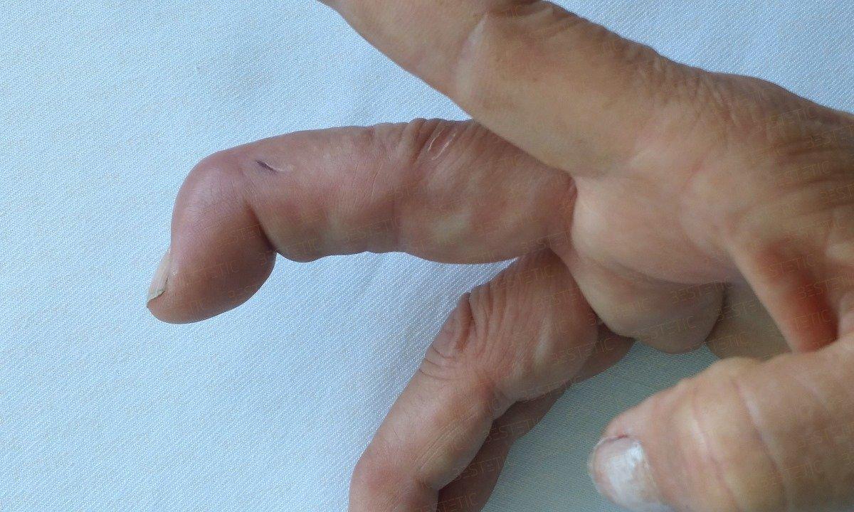 durere de extensie în articulația mâinii o durere a articulației picioarelor sub genunchi