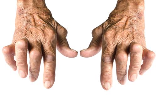 sat de tratare a articulațiilor durere acută la genunchi atunci când este apăsat