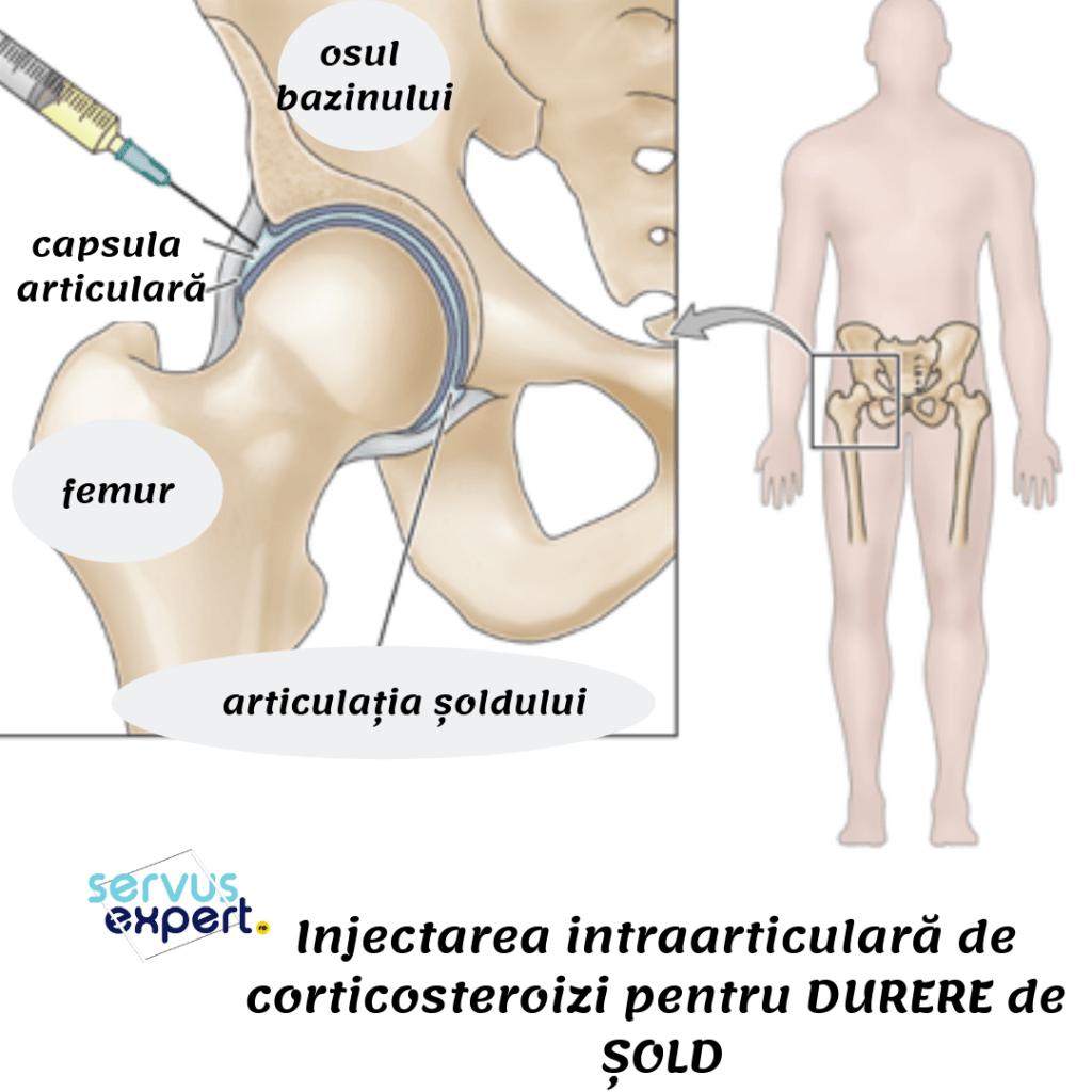tratați o articulație ruptă inflamația articulară pe picior