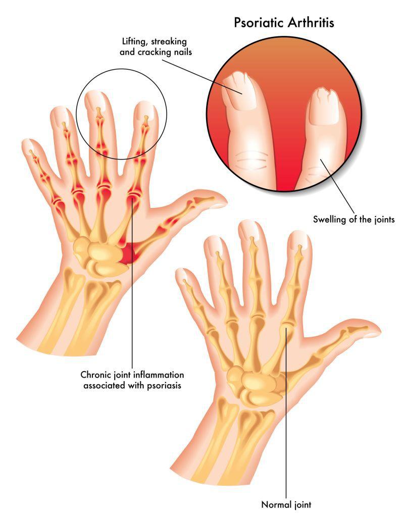 artroza durerii articulare a forului articulațiilor umărului
