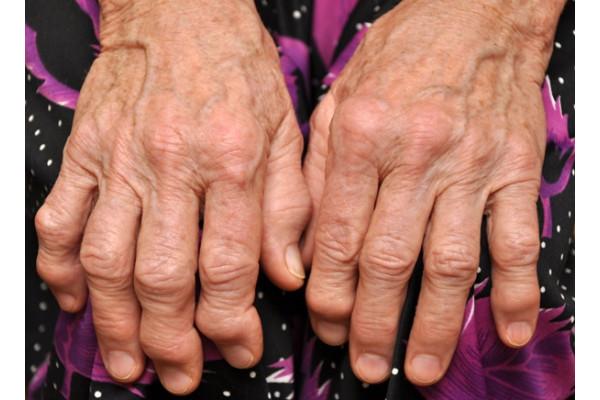 artrita cronică a mâinilor