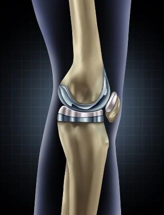 Durere articulară osteochondroză lombosacrală simptomele și tratamentul bolilor osoase și articulare