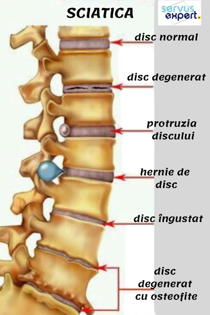 artroza consecințelor articulației gleznei