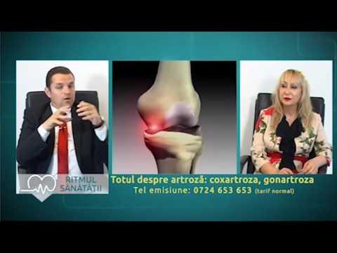tratamentul cu artroză a badi tyansha steroid unguent articular