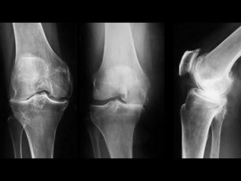 durere la mișcarea articulației genunchiului