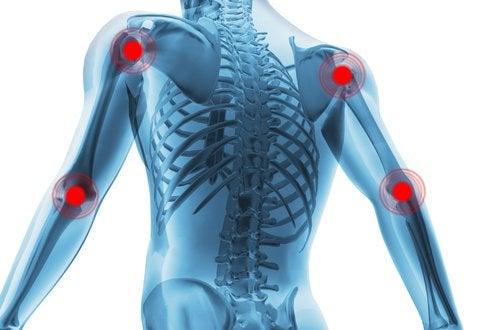 artrită. scapa de durerile articulare