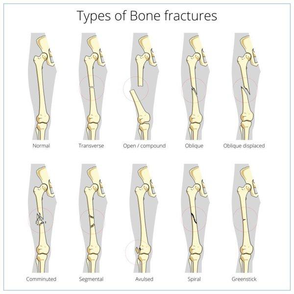 fracturi osoase și leziuni articulare injecții de durere severă în articulații