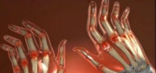 articulația inflamată a tratamentului degetelor mari boli ale articulației puse