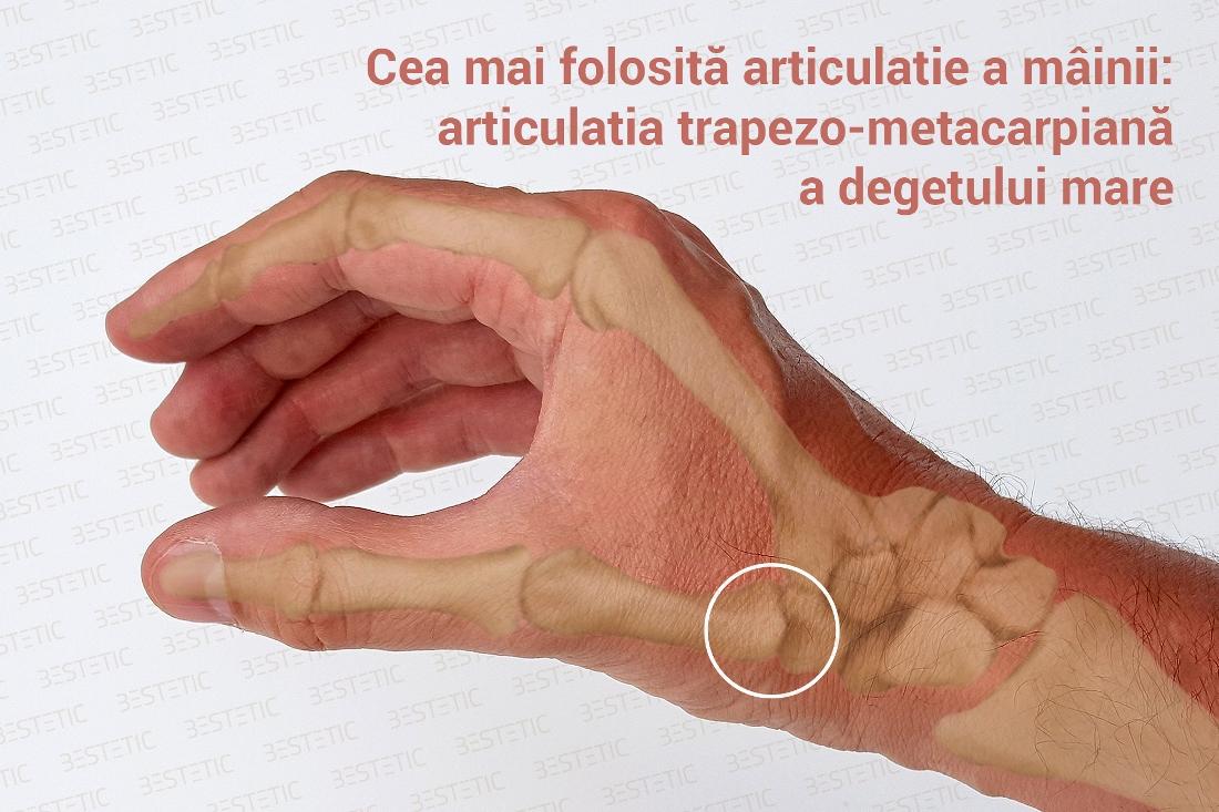 artrita și artroza în tratamentul degetelor