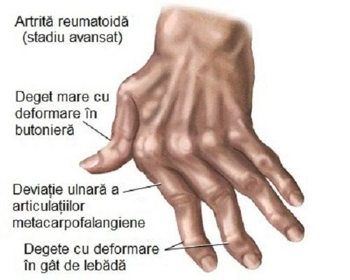 mâinile în articulații doare Balsamul comun Schuster