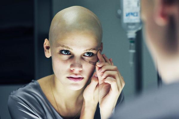 De la dureri articulare după chimioterapie. Dureri articulare dupa chimioterapie