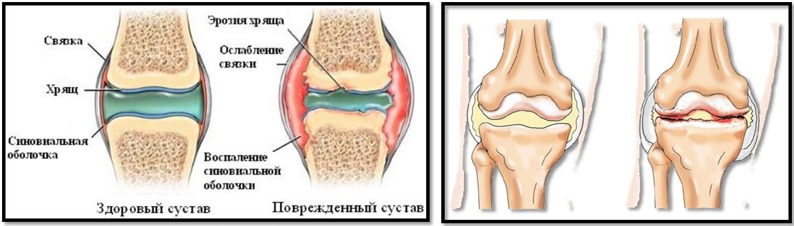 cum am vindecat artroza articulației șoldului