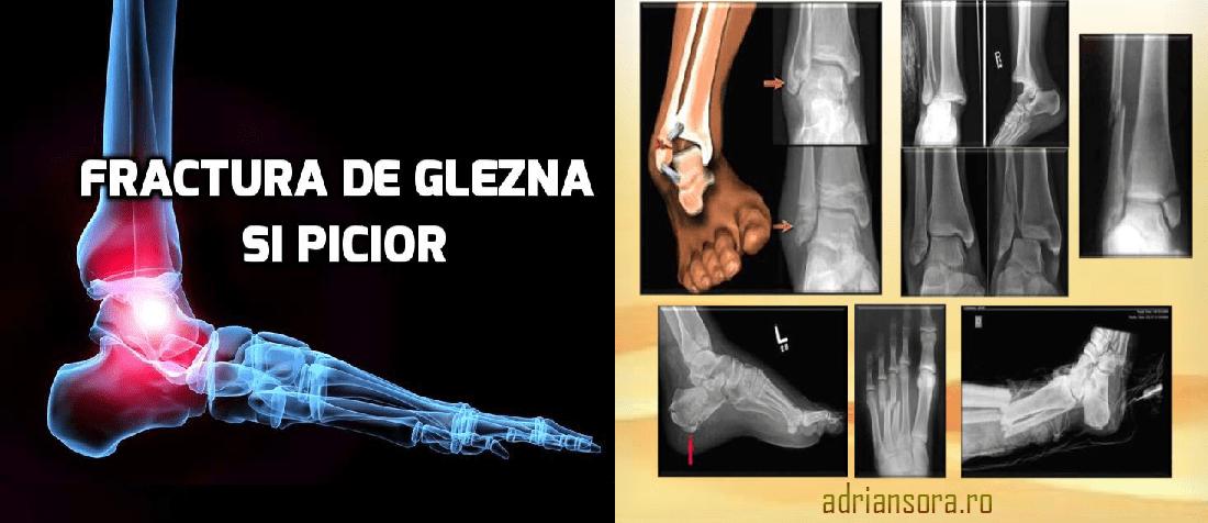 durere în articulațiile picioarelor după 50 de ani durere la gleznă la ridicare