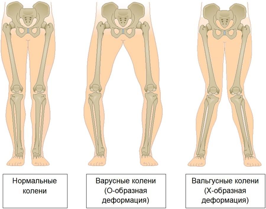 scrâșnește și doare articulația șoldului tratamentul artrozei piciorului în 2 etape