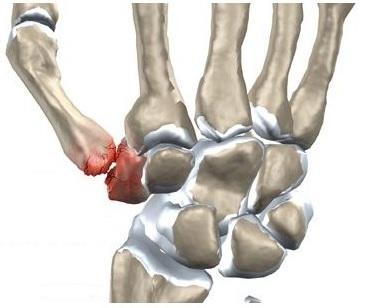 artrita articulației încheieturii
