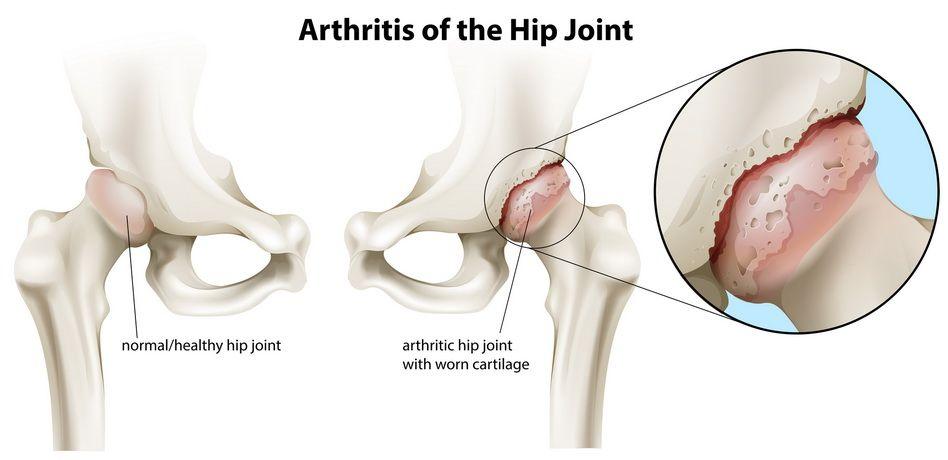 scrâșnește și doare articulația șoldului tratament pentru artrita și pastile de artroză