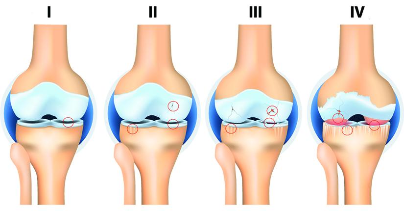 artroza și tratamentul de gradul al treilea