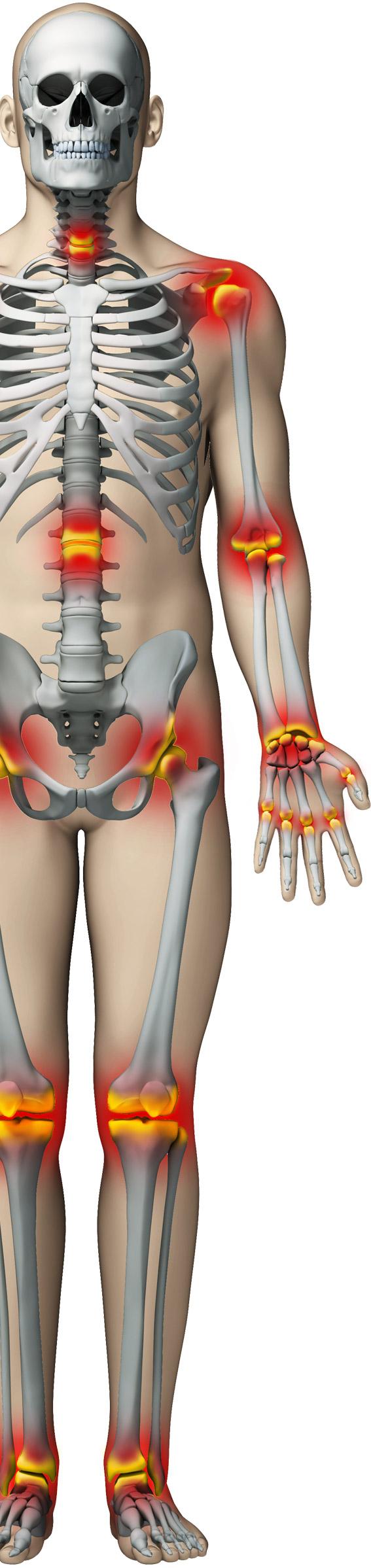 articulațiile doare după călcâie articulații dureroase ale nasului
