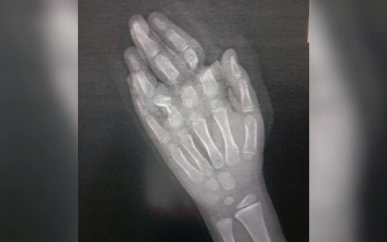 pastile pentru bolile articulare Tratamentul mobil al articulațiilor genunchiului