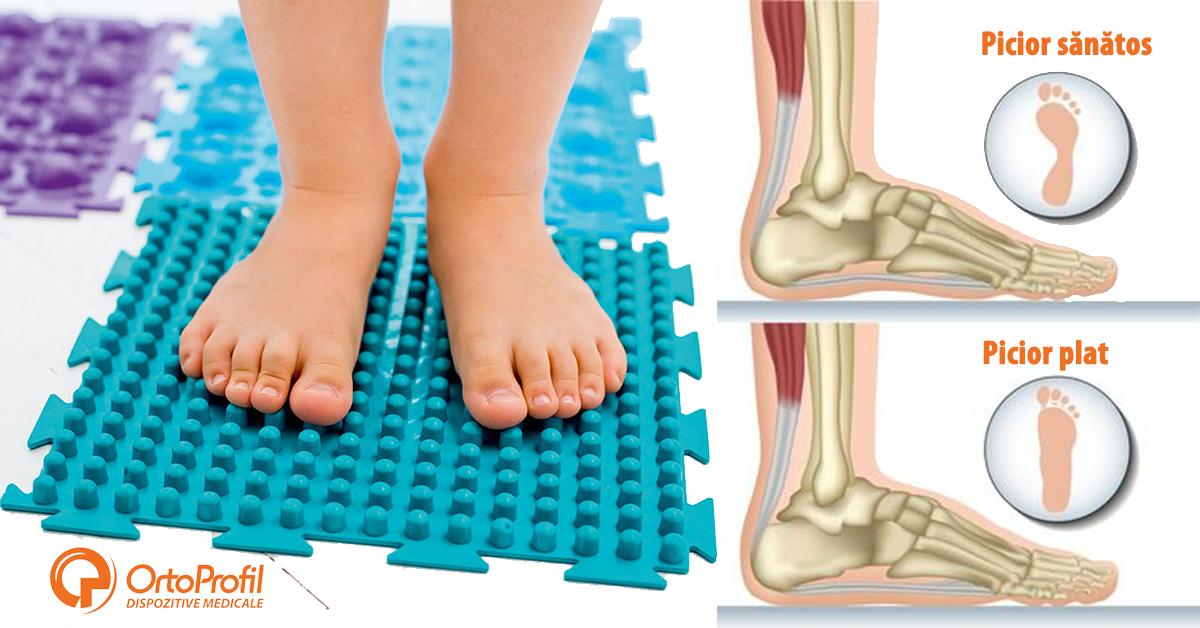 articulație cremă medea dureri la nivelul articulațiilor genunchiului și apariție