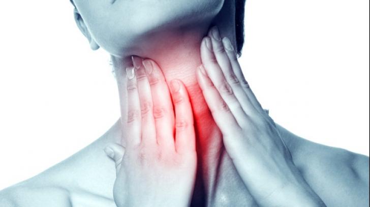 dureri de gât medicamente articulațiilor