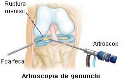 ruperea meniscului articulației genunchiului tratamentul artrozei-artritei genunchiului